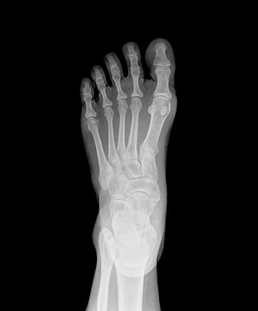 X-ray humans ankle with arthritis , top view