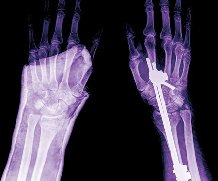 deformity: xray of fracture wrist and chronic infection. It was operated and external fixed by plate and screw , top view Stock Photo