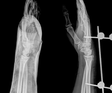 deformity: xray of fracture wrist and chronic infection. It was operated and external fixed by plate and screw ,side view Stock Photo