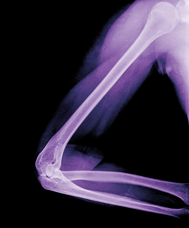 bone fracture: X-ray view of elbow Stock Photo