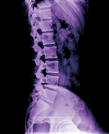 X-ray lumbo-sacral spine and pelvis of asian adult people ,side view photo