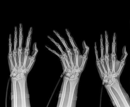 three hands: three  hands position on x-ray isolated on black background Stock Photo