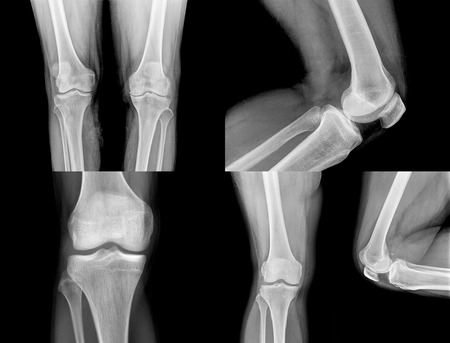 tortured body: collection of  xray of normal a human knee isolated