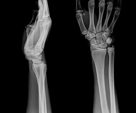 distal: film x-ray wrist show fracture distal radius (forearms bone) Stock Photo