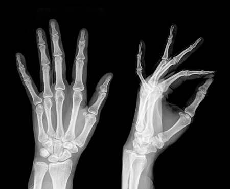 imaging: Medical X-Ray imaging of hand fingers used in diagnostic radiology of skeleton bones , two position