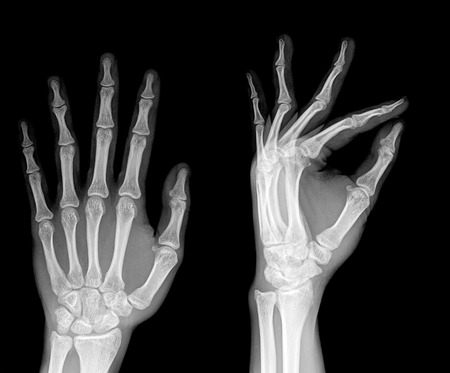radiography: pair of hand on black background, x-ray