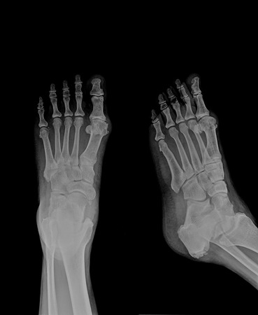 ankle: xray of ankle Stock Photo
