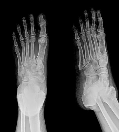 radiological: X-ray of both human feet
