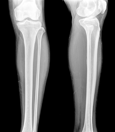 X-ray of both human legs Stok Fotoğraf