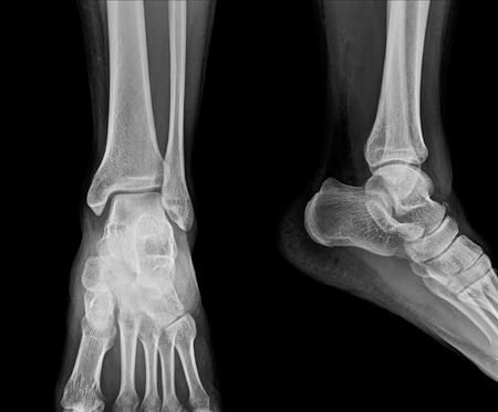 Close up x-ray of ankle Standard-Bild