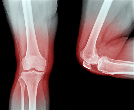 X-ray image Knee joint