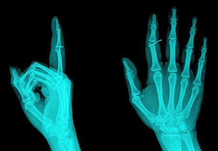 X-ray hand showing a middle finger sign , 2 position