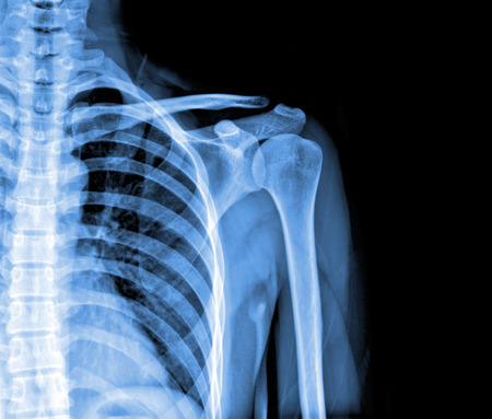 dislocation: x-rays image of the painful or injury shoulder joint ,shoulder dislocation