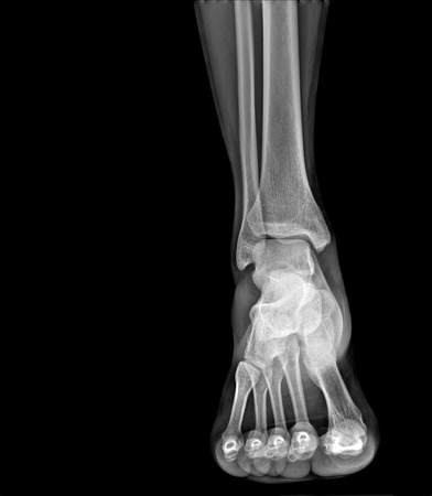 Arthritis at ankle joint (Gout , Rheumatoid arthritis) 版權商用圖片