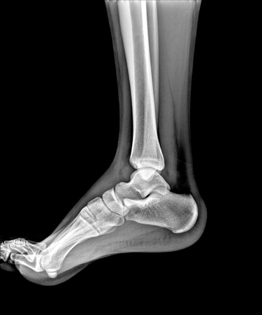 X-rays of leg fracture patients , ankle Stok Fotoğraf