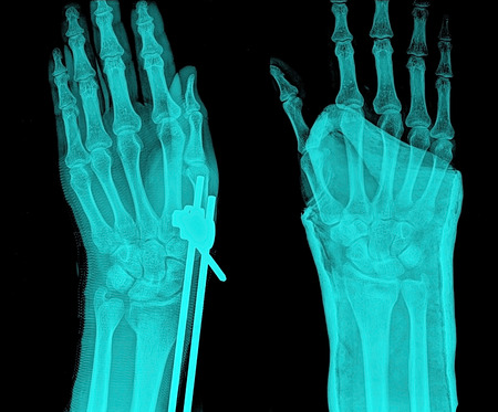 thumb x ray: x-ray of hand,painful