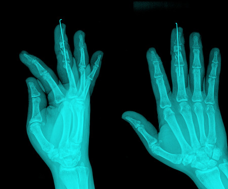 pair of hand on black background, x-ray photo