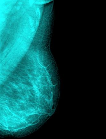 breast milk: female breast milk x-ray - close-up