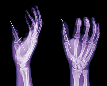 black and white photo of x-ray picture of human hands Stock Photo