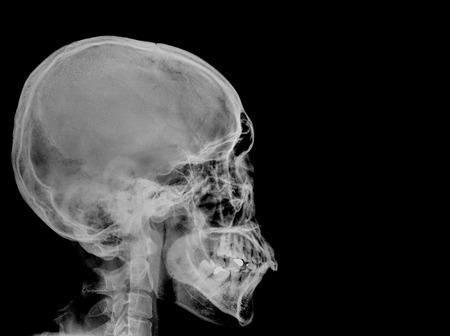 X-ray Skull ( Skull Lateral )