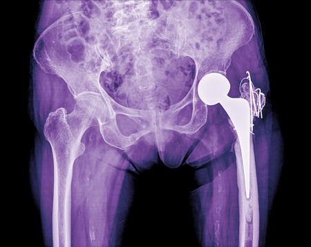 hip replacement: hip replacement surgery, good outcome