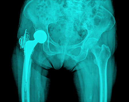 replacement: hip replacement surgery, good outcome