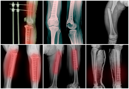 good quality: Collage of many bone legs fracture X-rays. Very good quality