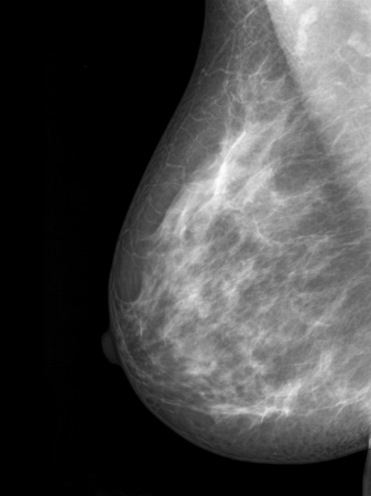 breast nipple: mammography breast scan X-ray image