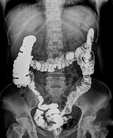 intestinal cancer: picture of intestinal abdominal xray