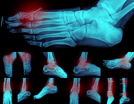 foots: Collage of many foots painful X-rays. Very good quality Stock Photo