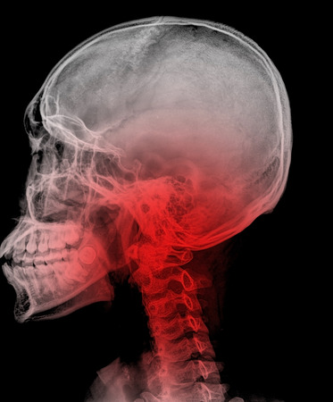 MRI - Magnetic Resonance Imaging of Spinal Column and Skull Head