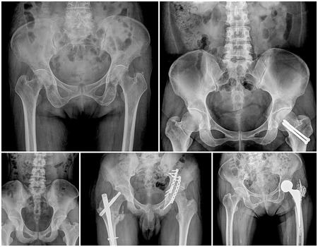 hip replacement: collection of hip replacement surgery, good outcome