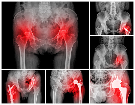 collection of hip replacement surgery, good outcome photo