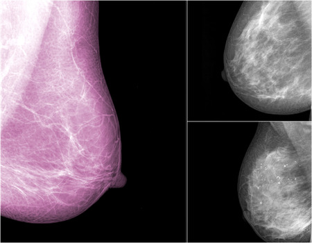 collection of Mammogram radio imaging for breast cancer Stock Photo