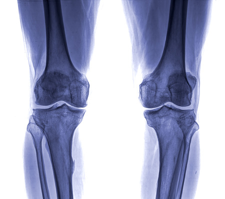 Knee x-ray , isolated on white background photo