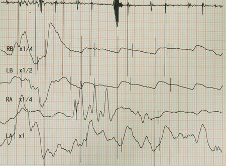 Electrocardiogram graph , ekg heart rhythm, medicine concept