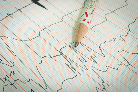 cardiological: Electrocardiogram graph , ekg heart rhythm, medicine concept