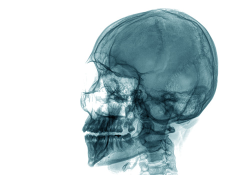 roentgenograph: X-ray of a human skull