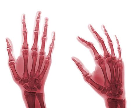radiological: X-ray hand