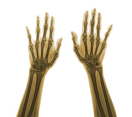 thumb x ray: X-ray hand