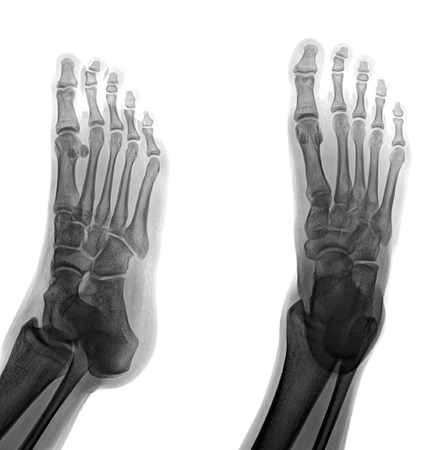 radiation therapy: pair of feet from different views