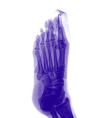 proximal: film x-ray show fracture proximal phalange at first toe
