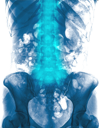 low back: Lumbar spine of woman and inflammation at lumbar spine ( low back pain ) ( X-ray thoracic - lumbar spine