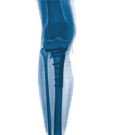 roentgenograph: X-ray image painful of shin , front view