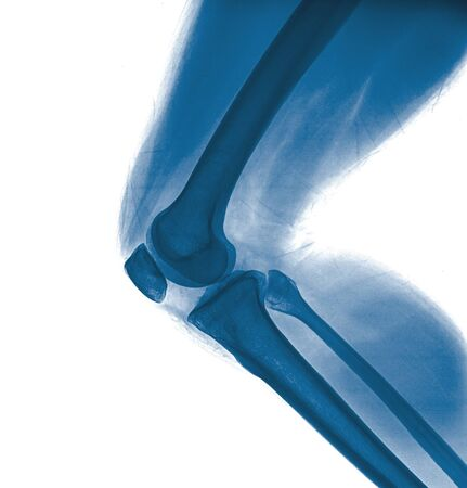X-ray of a knee Stock Photo