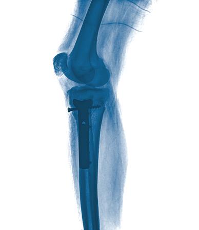 pierna rota: Radiograf�a de la pierna rota Foto de archivo