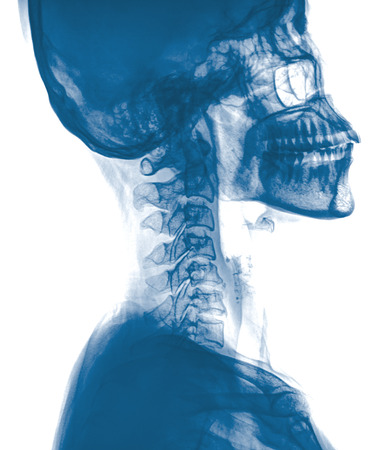 calcification: The right  parietal bone calcification (CR)