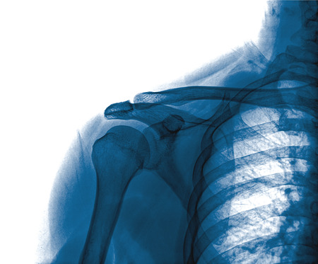 fractured: X-ray of shoulder joint Stock Photo