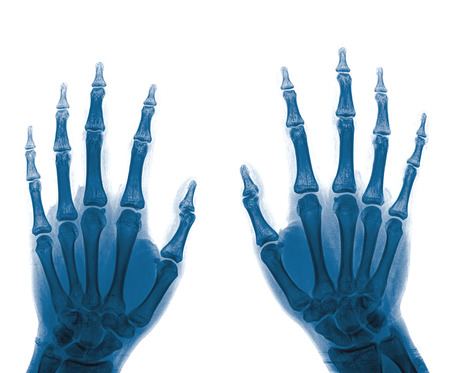 normal: X-Ray Hands ( front view ) : Normal human hands
