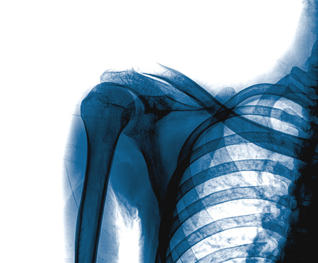 radiological: X-ray of human shoulder. front view